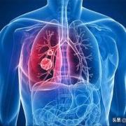肺癌发生时,皮肤有什么异常表现?