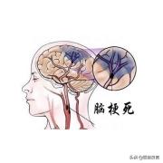 脑梗来临,头部有什么症状?