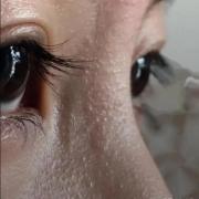 眼睛周边脂肪粒怎么去掉?