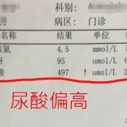 正常人尿酸是多少?尿素高又是怎么回事呢?