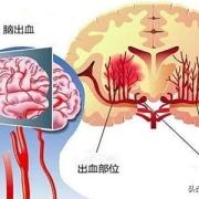 """50岁后,进入""""生命高危期"""",不想脑出血,少做哪些事情?"""