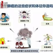 最近一段时间总感觉胸痛,朋友说可能是肺癌,可能性大吗?