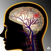 什么运动对心脑血管最有益?