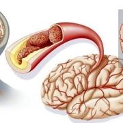 脑梗的祸首不是肥肉是什么?
