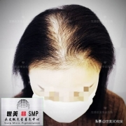 本人脱发,检查毛囊坏死。有什么好办法?