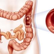 哪些人容易得肠癌?身体出现什么异常需要做肠镜检查?
