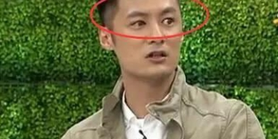 余文乐的另一只眼是不是假的?