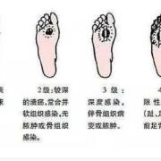 血糖过高时,脚上会出现一些症状,都有哪些表现?