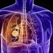 肺结节怎么办,寿命有多长?