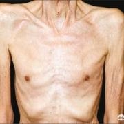 癌症扩散,但是病人饭量还行,精神也很好,体重也在增加是怎么回事?