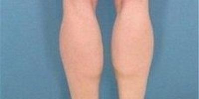 小腿有脂肪又有肌肉,该怎么瘦?