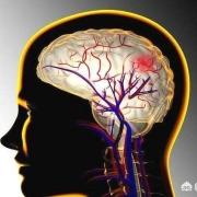 阿司匹林会诱发脑溢血吗?