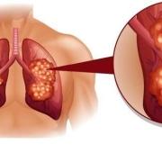肺癌晚期转移了,还能活多久呢?