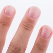 指甲能透露哪些健康问题?该如何预防和应对?