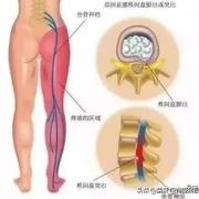 腰椎间盘突出会引起脚背痛吗?为什么?