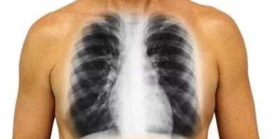 经常抽烟的人多吃什么可以保肺?