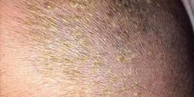 新生儿出生头上没有头垢,反而三个月后开始长头垢,这是怎么一回事?