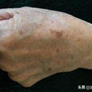全身老年斑,是体内毒素过多,免疫力低下造成的,你认为呢?