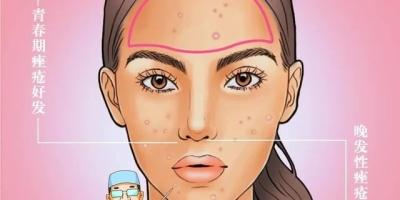 女朋友喜欢抠痘痘是一种怎样的体验?