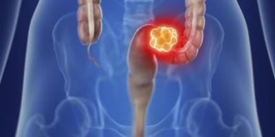 预防肠癌需几年做一次肠镜?