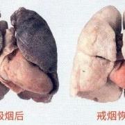 身边两个突然戒烟的朋友,消化系统都出了点问题,戒烟真的好吗?