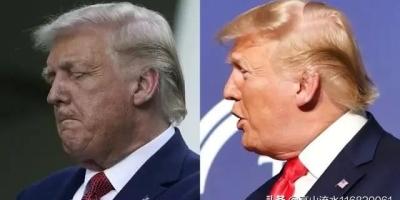 短短一周,特朗普的头发由金黄变为白色,到底是什么原因?