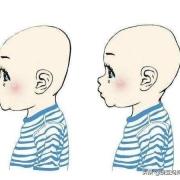 月嫂一直让宝宝两边来回侧睡,宝宝后脑勺比较凸,月嫂说长长就好了,是真的嘛?