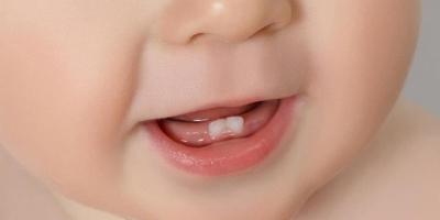 如何缓解宝宝长牙的不适?