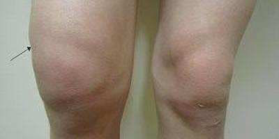 膝盖有积液会发出吱吱响的声音吗?