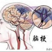 """脑梗到来前,身体会发出哪些""""求救""""的信号?"""