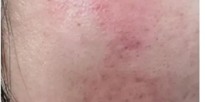 学生,女,脸上长期起痘,某宝上买了些祛痘面膜(并不便宜),想问懂行的或者有经历的人:这个靠谱吗?