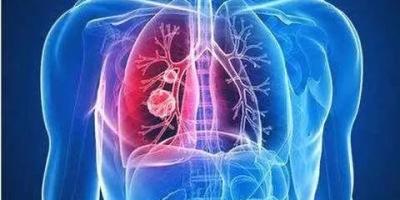 肺癌饮食食谱有哪些推荐?