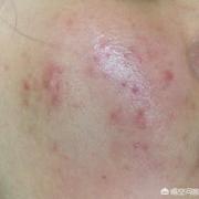 脸上有痘印(红色的)还有痘坑,有什么方法可以去除?
