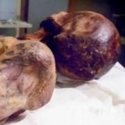 据说考古学界发现有十大女尸?你怎么看的?