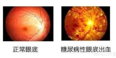 二型糖尿病,眼睛模糊吃什么好?
