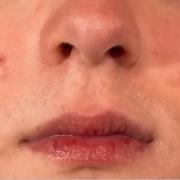 如何去除脸上的痘印、痘坑?