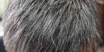 白头发与寿命有什么关系?