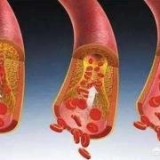 人体内的血栓能化解吗?