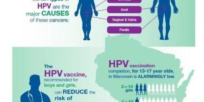 女性易感染HPV病毒的最主要的原因是什么?需要怎样预防感染HPV病毒?