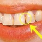 为什么牙齿上抠下来的东西很臭,在嘴里时却闻不到?