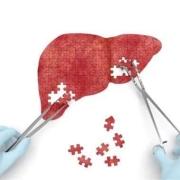 乙肝携带者有肝囊肿会引起癌变吗?