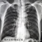 8个月前胸片正常,8个月后肺部会出现癌症吗?